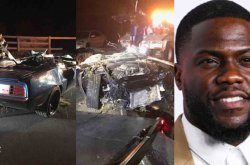 Popular American comedian, Kelvin Hart, suffers major injury from a serious car accident